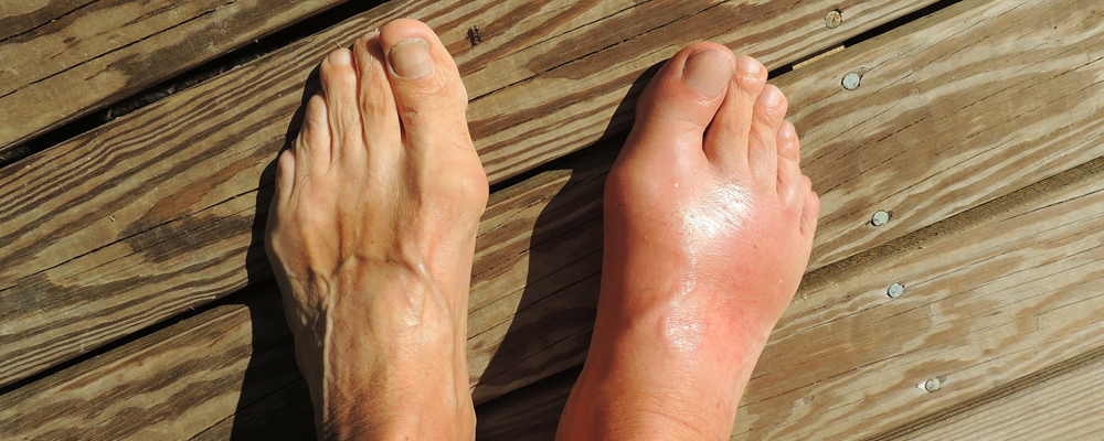 Gout And Its Treatment